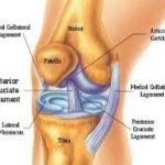What Are The Different Types Of Knee Injuries?