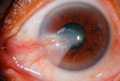 Large Primary Pterygium Invading The Pupil