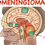 Are Meningiomas Fatal?