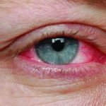 Can You Get Pink Eye From A Fart?