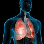 What Are The Early Signs Of Pneumonia?