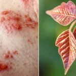 What Does Poison Ivy Look Like On The Skin?