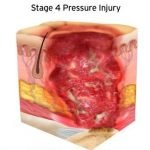 Is A DTI A Pressure Ulcer?