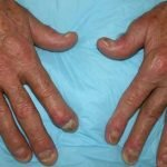 What Are The First Signs Of Psoriatic Arthritis?