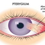 How Do You Remove A Pterygium?