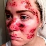 What Does Skin Cancer Look Like On The Face?