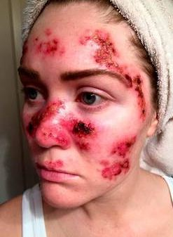 Skin Cancer On Face