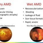 What Are The First Symptoms Of Macular Degeneration?