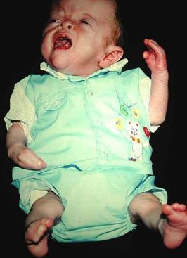 Child With Apert Syndrome