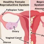 What Can Cause Pelvic Infection?